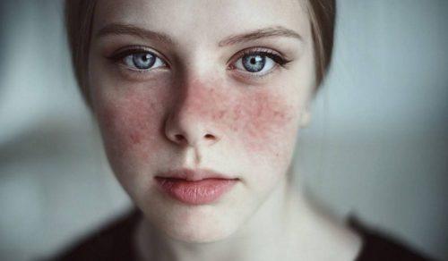 صورة 8 علاجات طبيعية لتخفيف أعراض الذئبة.. تعرف عليها