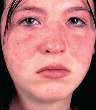 Photo of Lupus .. The best 8 home remedies for pain relief and symptoms