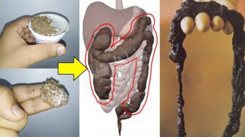 Photo of A definitive way to clean the colon. and the treatment of gases and bloating in 3 days