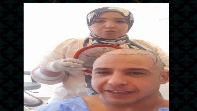 صورة بدر عياد يخضع لعملية زراعة شعر شاملة بواسطة الخبيرة والطبيبة الدولية ريهام الدسوقي
